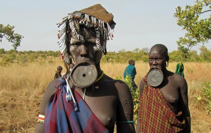 Etiopia altro Sud AFRICA